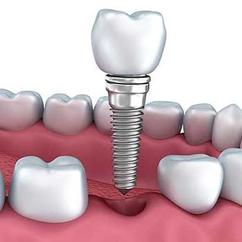 Sandstone Dental | North Calgary Dental Implants