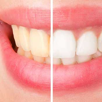 Sandstone Dental | North Calgary Teeth Whitening