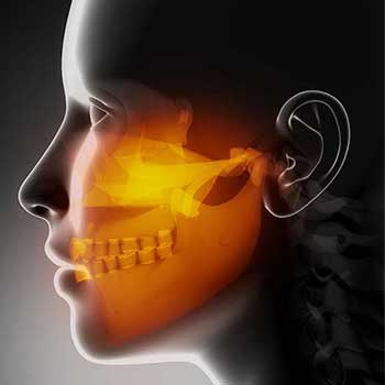 Sandstone Dental | North Calgary TMJ Jaw Pain Treatment
