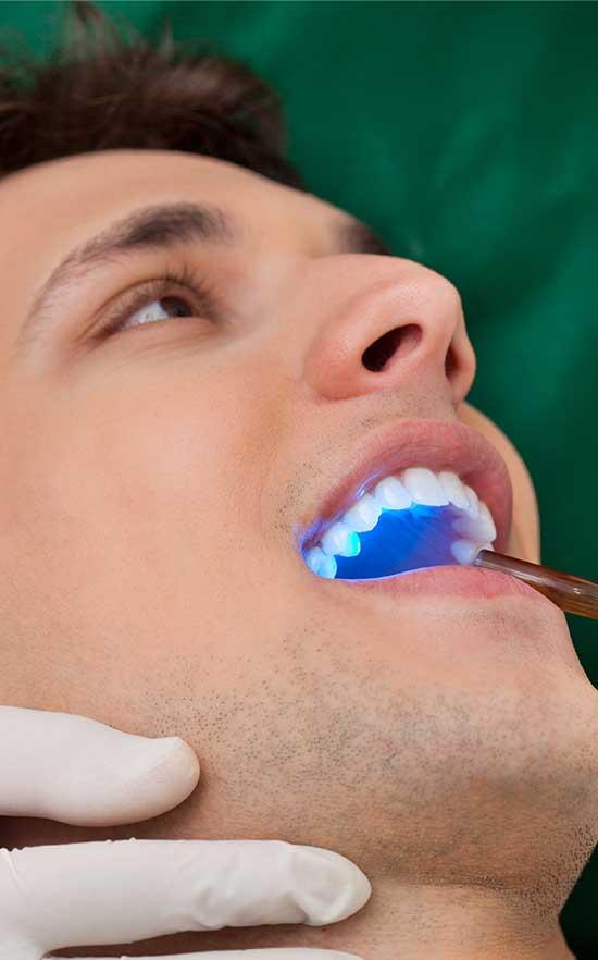 cosmetic tooth bonding in nw calgary