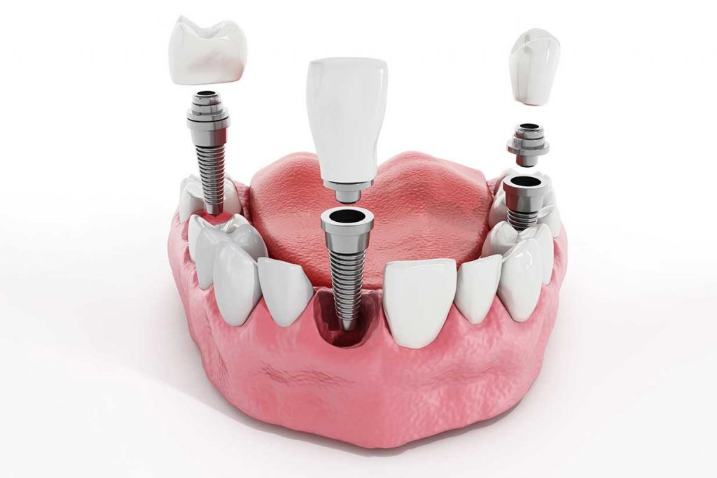 dental implants in nw calgary