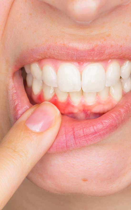 gum surgery near you