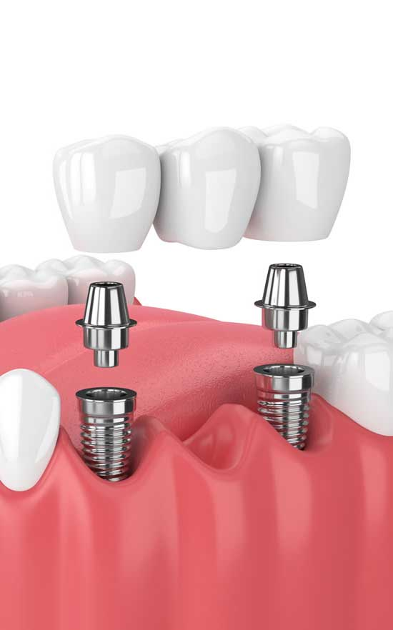 implant supported crowns and bridges in nw calgary