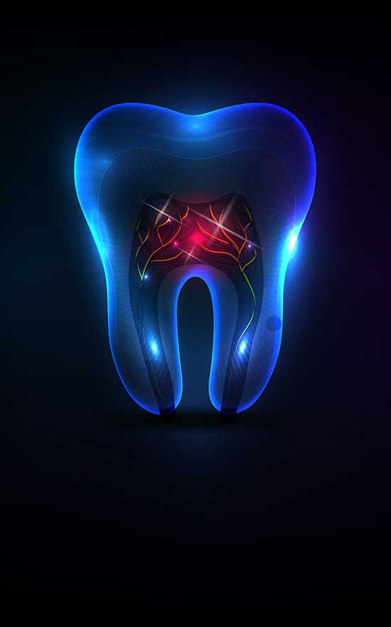 root canal therapy in nw calgary