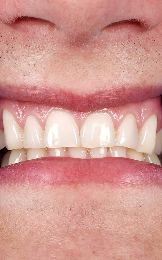 symptoms of gum disease