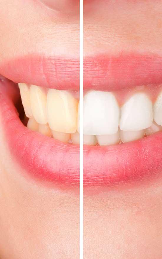 teeth whitening in nw calgary