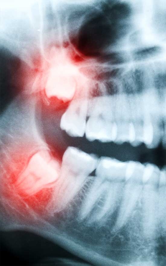 wisdom tooth extractions in nw calgary
