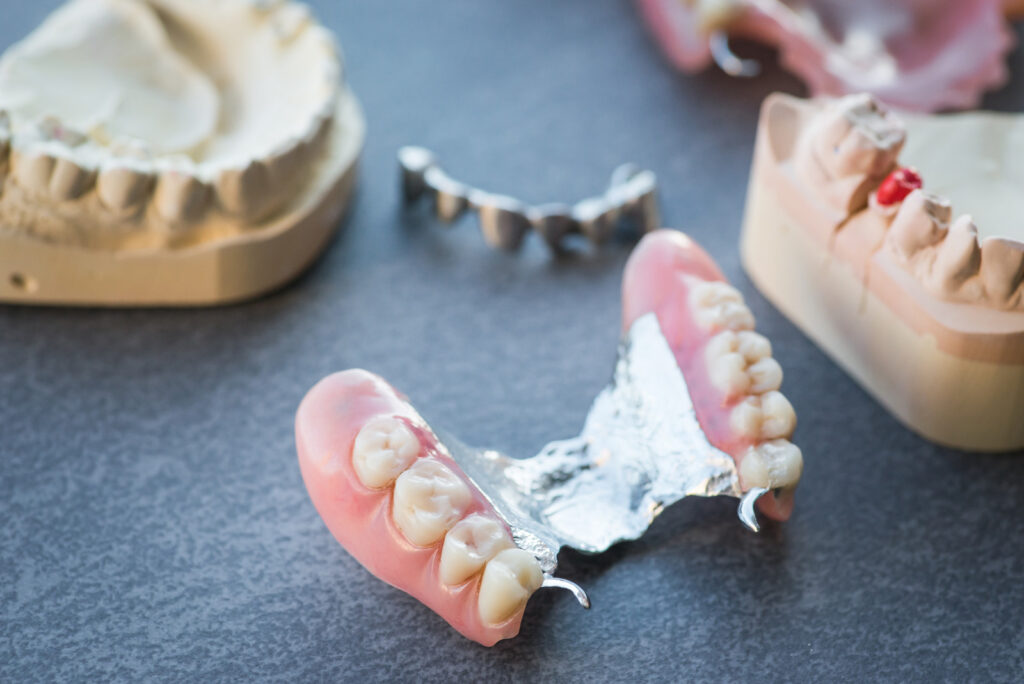 what are dentures and how can they help you