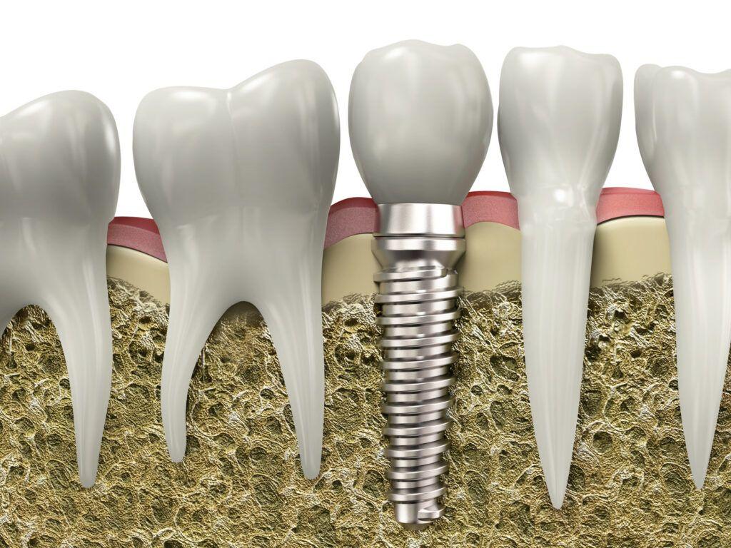 Dental Implants in Calgary